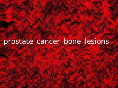 prostate cancer bone lesions